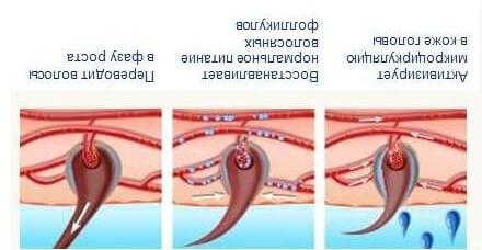 миноксидил для бороды до после эффект, отзывы
